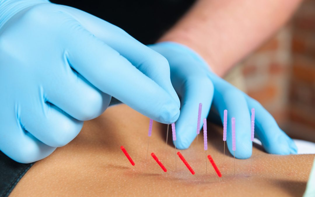 5 things to know about Dry Needling & how it can help you