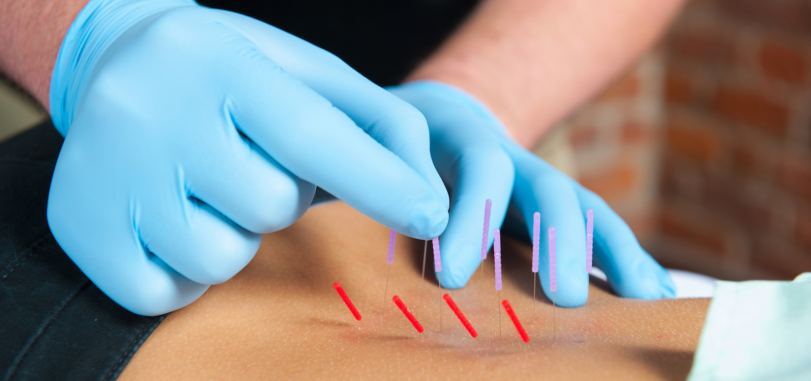 What Makes Everyone Go Crazy for Dry Needling