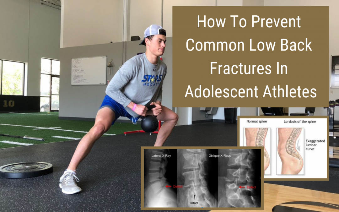 How To Prevent Common Low Back Fractures In Adolescent Athletes